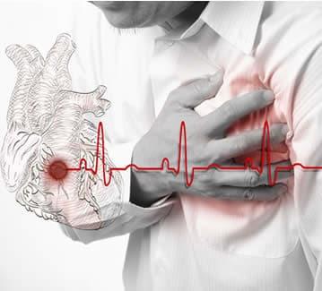 Riparare il cuore dopo un infarto: è possibile grazie ai microRNA