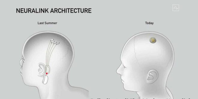 Neuralink, l'interfaccia uomo-macchina sempre più vicina